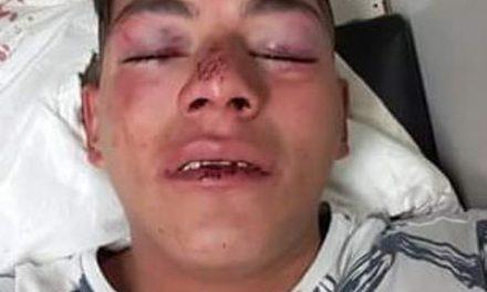 """¡Empleados del antro """"Michelodias"""" casi matan a golpes a un joven en Aguascalientes!"""