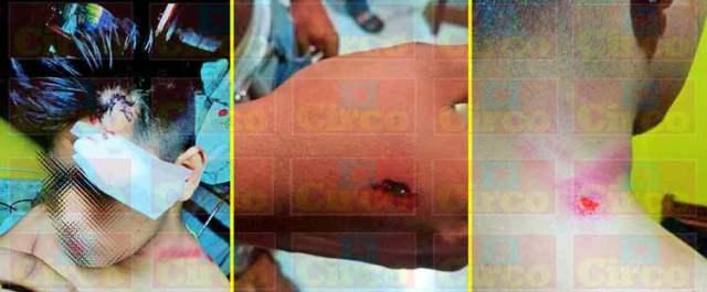 ¡Policías de 'La Chona' aplican la Ley a punta de golpes a vecinos de la Guadalupana!