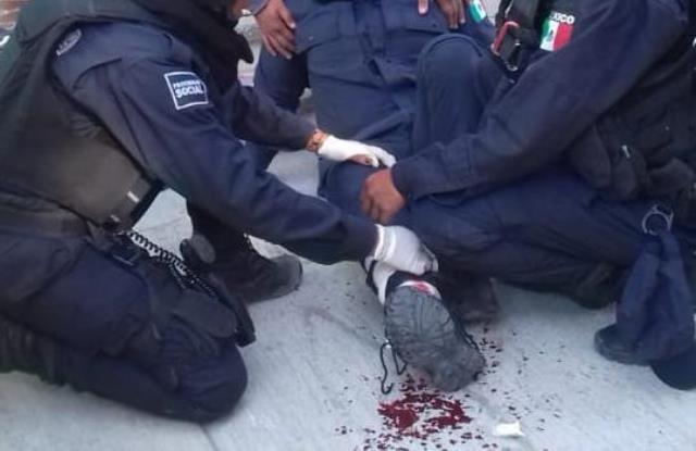 ¡Policía municipal fue herido de un balazo por su compañero al detener a un ladrón en Lagos de Moreno!