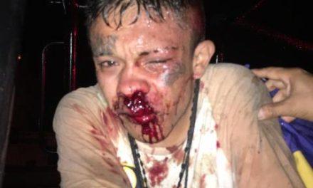 ¡Vecinos le pusieron la golpiza de su vida a un ladrón en el Morelos!