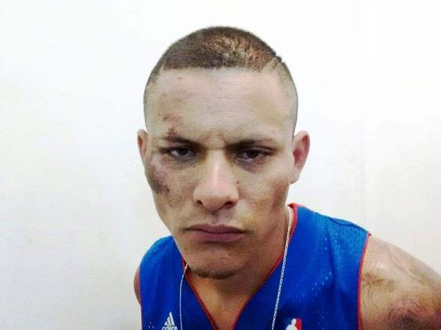 """¡Agoniza el delincuente """"El Trascabo"""" tras estallarle una bomba casera en Aguascalientes!"""