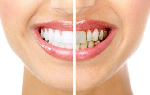 ¡80 por ciento de la población acude al dentista hasta que les molesta o les duele una pieza dental: Jovita Romero Casanova!