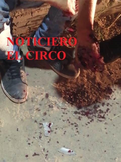 ¡Grave taxista que se volcó en Aguascalientes; podría perder una mano!