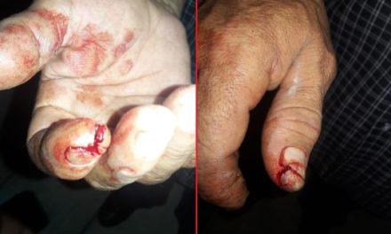 ¡Adulto y adolescente fueron heridos a balazos tras una riña en Aguascalientes!