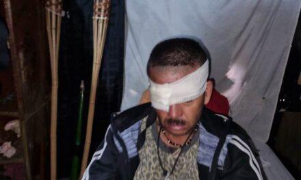 ¡Lesionaron a un hombre de un balazo en la cara en Aguascalientes!